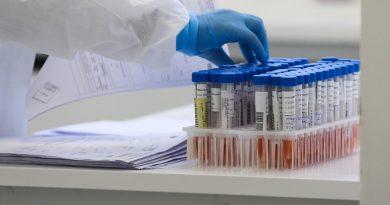 PE tem mais 765 casos do novo coronavírus e oito mortes; estado totaliza 190.415 confirmações e 9.148 óbitos